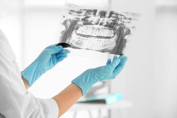 Estetisk tandvård Malmö, röntgenbild
