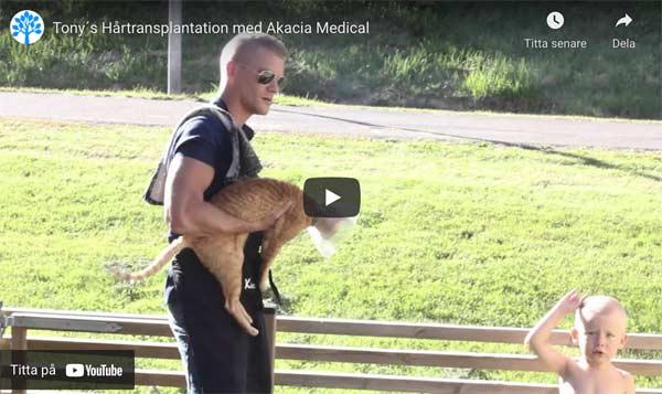 Hårttransplantation video