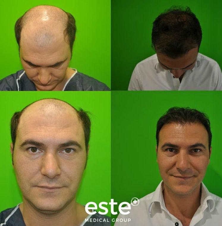 före och efter en hårtransplantation