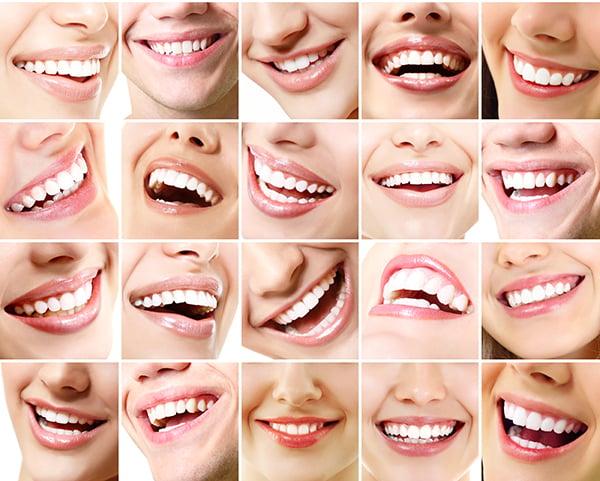 tusen smiles med raka tänder