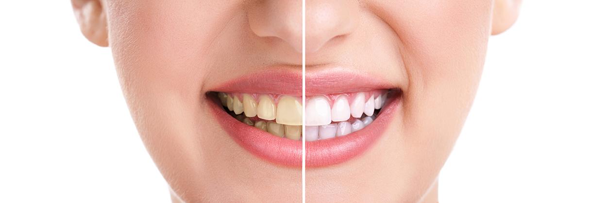 Vi erbjuder tandblekning, tandimplantat, skalfasader och invisalign i Stockholm.