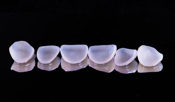 veneer appliceras på tand