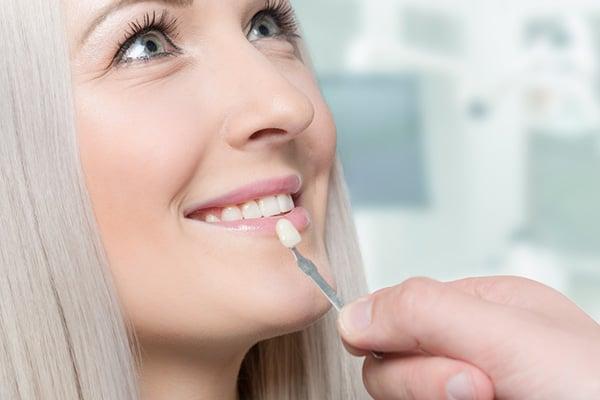 tandfasadskal för applicering på tand
