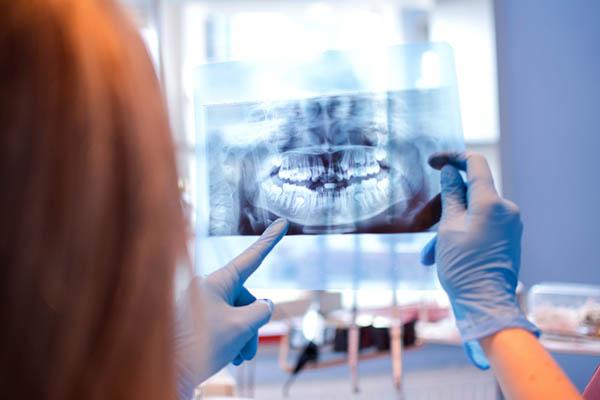 röntgenplåt på garnityr