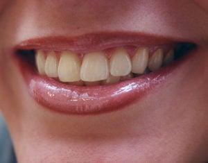 tandblekning före