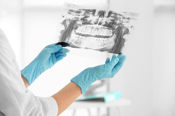 tandvård malmö röntgenbild